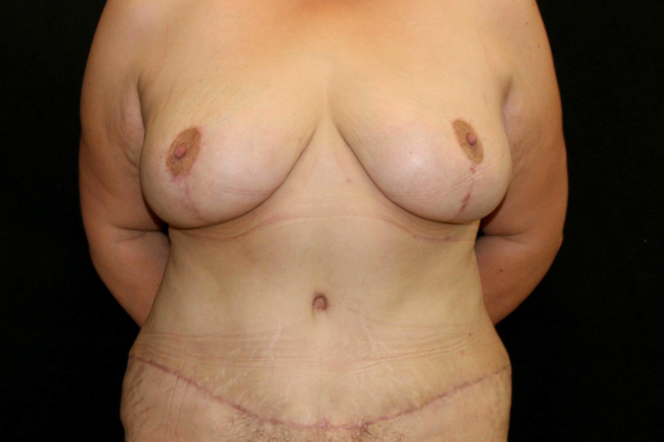 Réduction + Abdominoplastie 1 (Après)