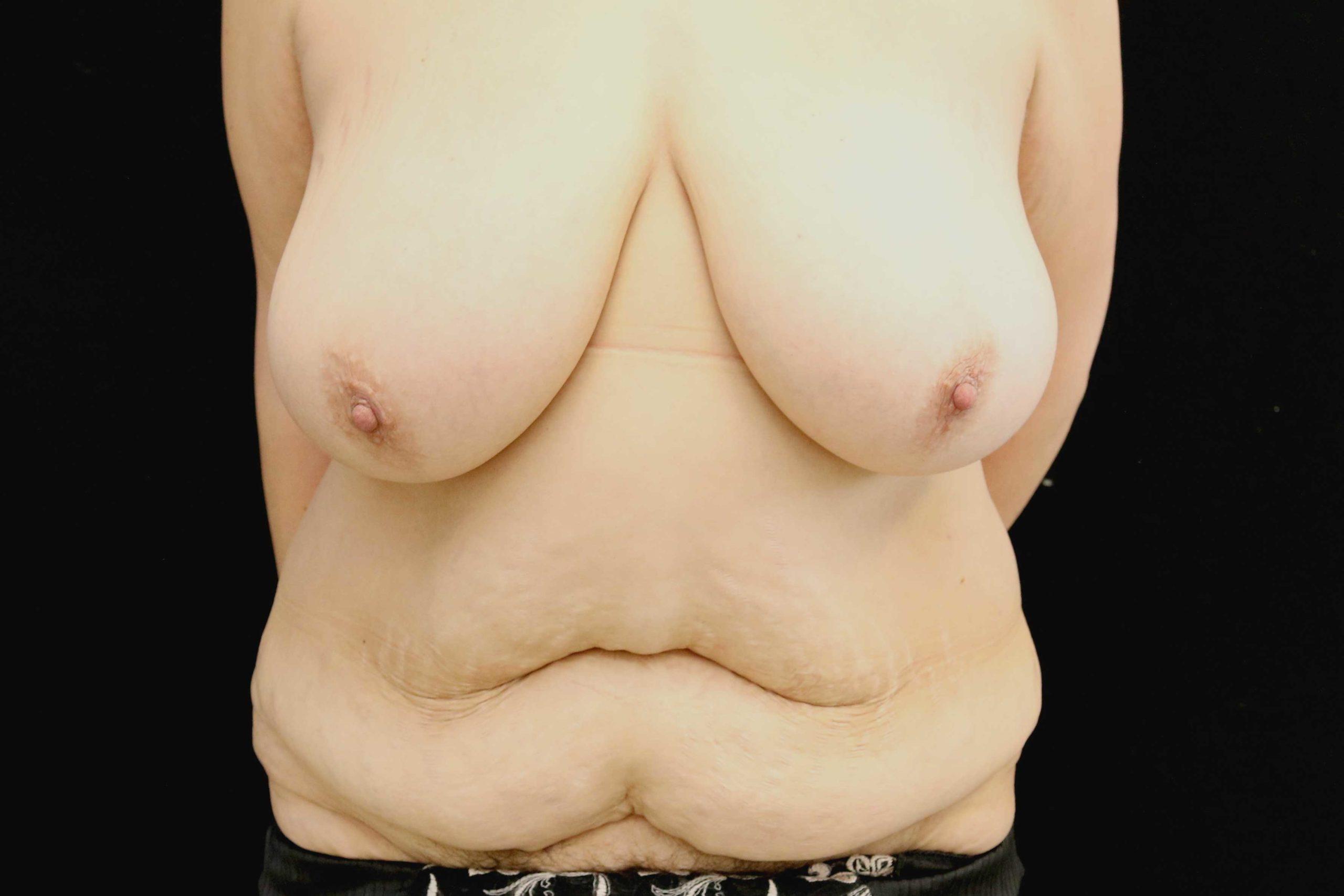 Réduction + Abdominoplastie 1 (Avant)
