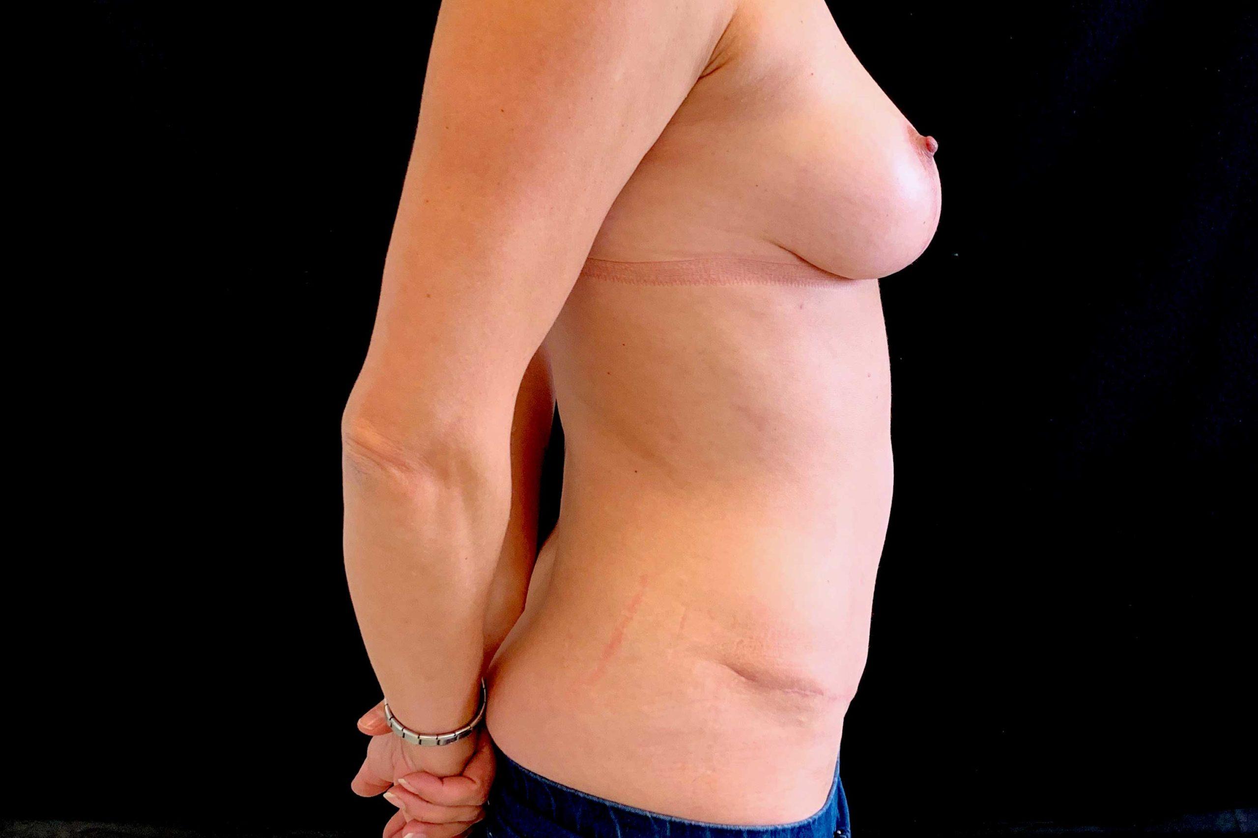 Réduction + Abdominoplastie 2 (Après)