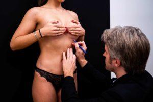 augmentation - mammaire - chirurgie - esthétique - réparatrice
