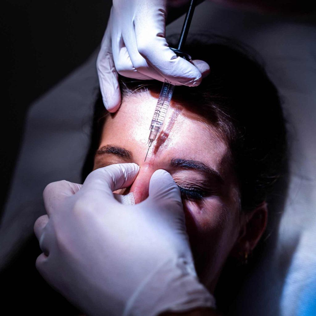botox - comblement - différence - interventions - chirurgie - toxine botulique