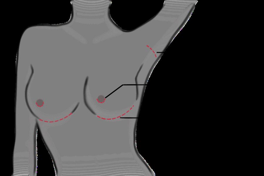 augmentation - mammaire - chirurgie - esthétique - réparatrice - allaitement