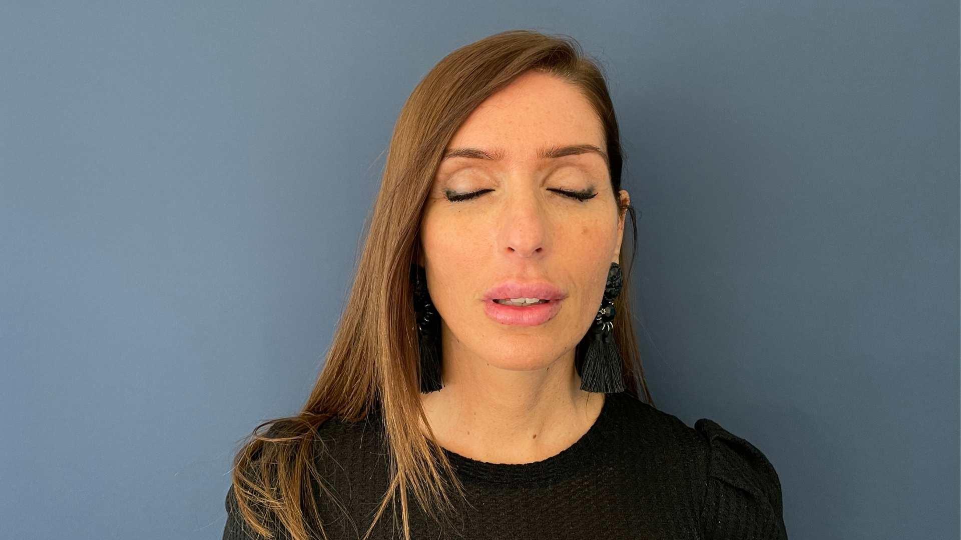 Injections lèvres de face - après