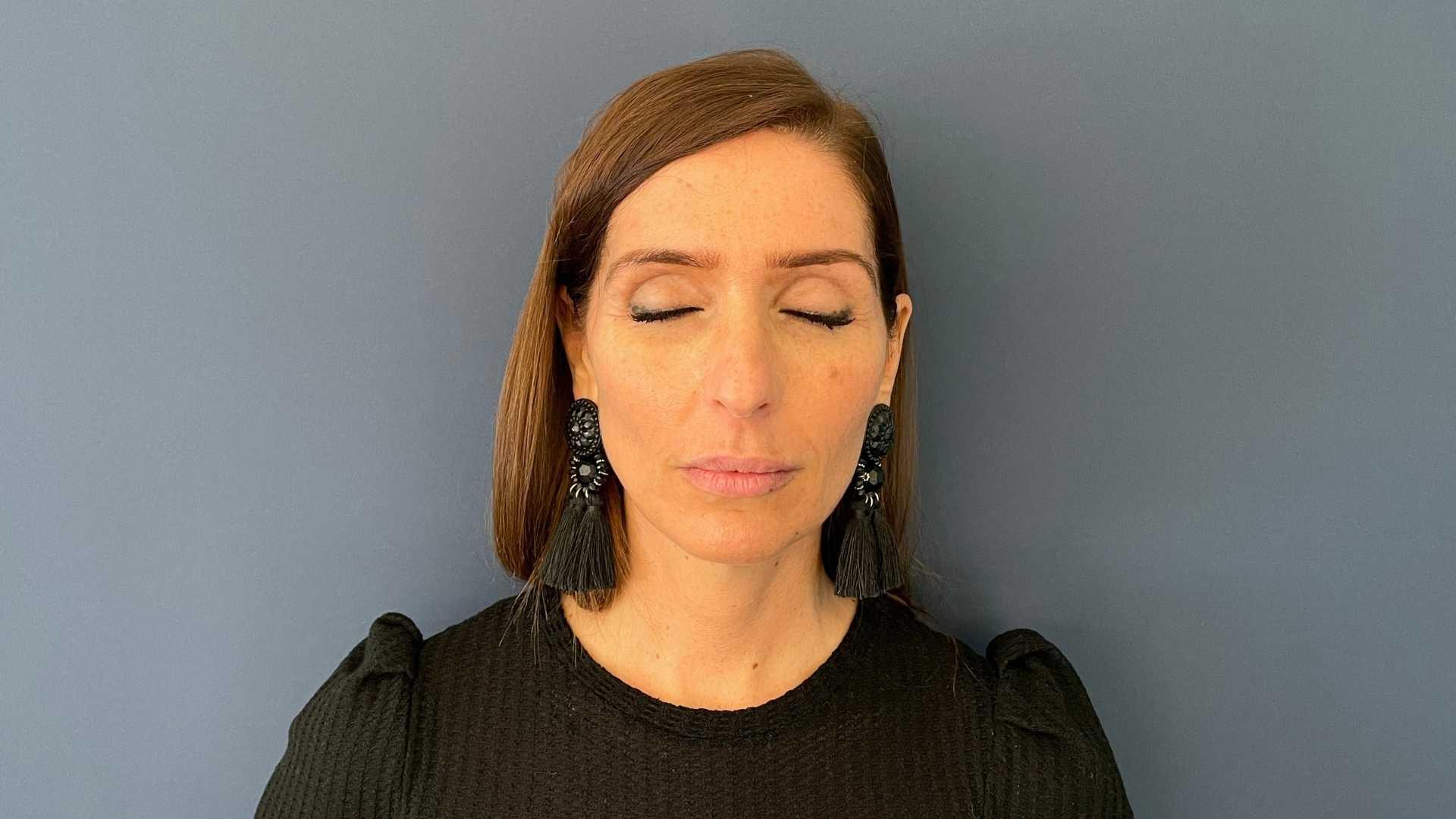 Injections lèvres de face - avant