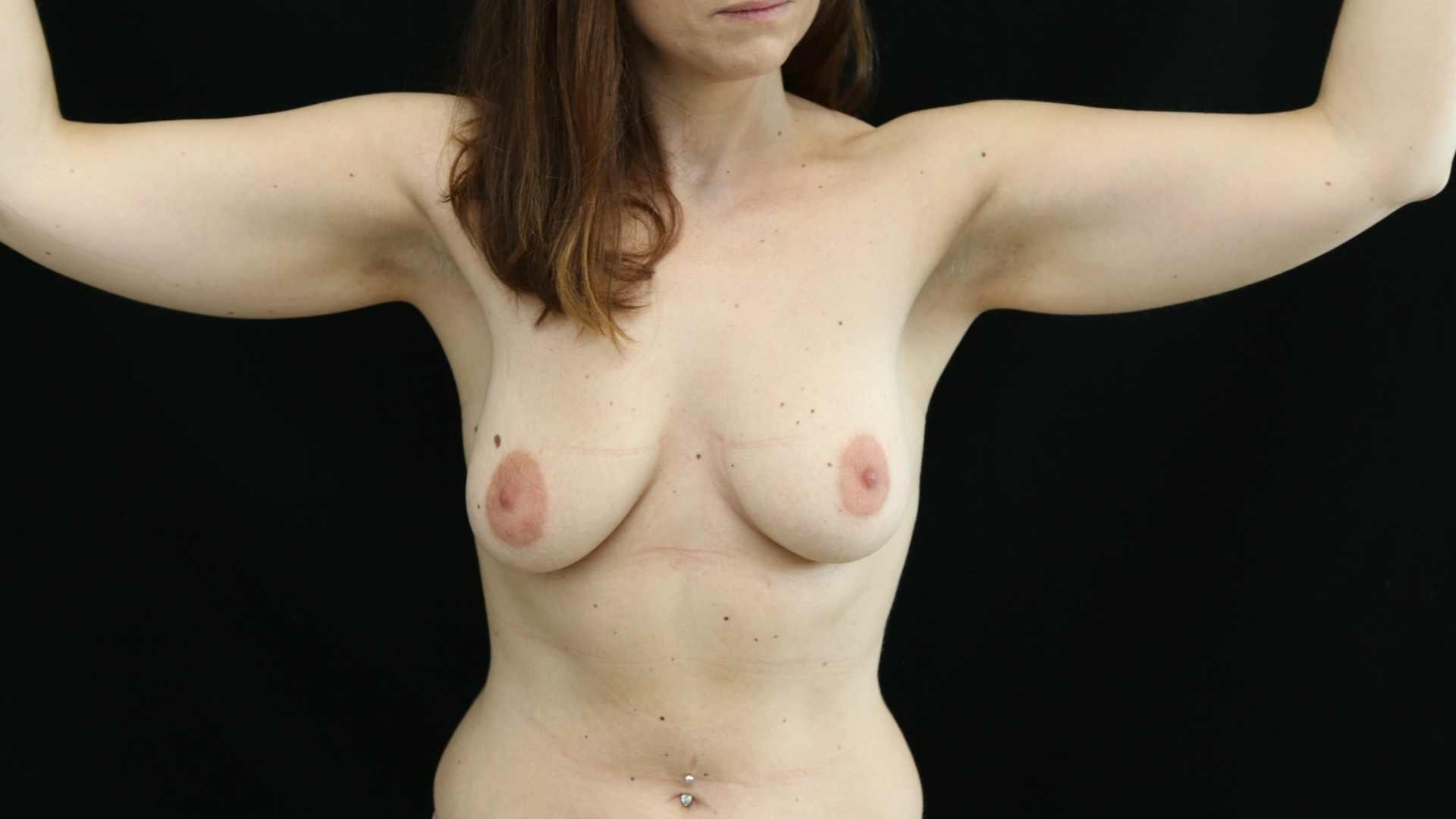 Lipofilling des seins - avant