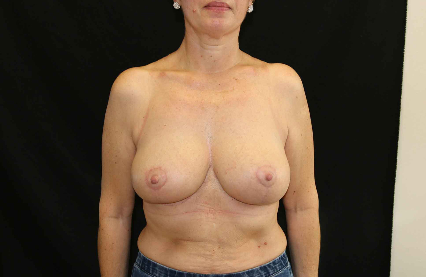 Apres chirurgie reduction mammaire