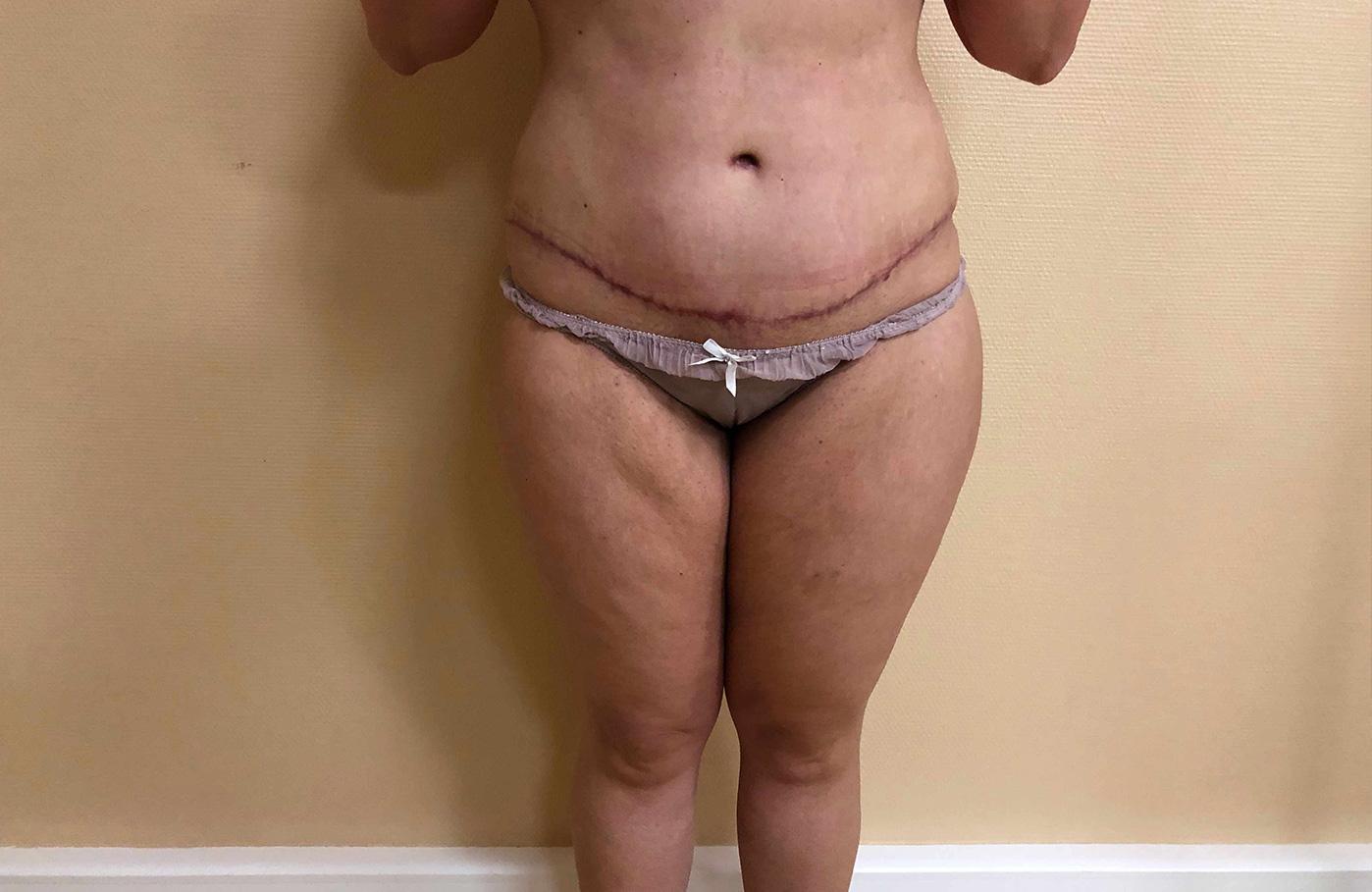 apres chirurgie bodylift