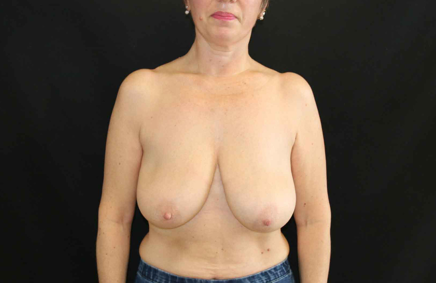 Avant chirurgie reduction mammaire